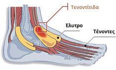 Αίτια και συμπτώματα της τενοντοελυτρίτιδας. Μάθετε περισσότερα! Leiden, Tendinitis, Pilates, Massage, Sport, Inspiration, Happy, Tooth Infection, Repetitive Strain Injury
