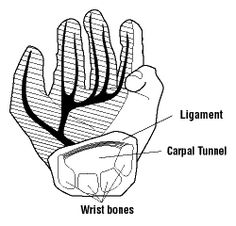 an analysis of carpal tunnel syndrome caused by the use of computers Objectives the boom in computer use and concurrent high rates in musculoskeletal complaints and carpal tunnel syndrome (cts) among users have led to a controversy about a possible link most studies have used cross-sectional designs and shown no association the present study used longitudinal data .