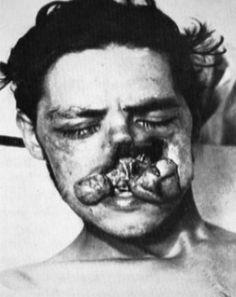 traumi faccial ww1 - Cerca con Google