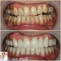 Emax Veneers by Dr. Haider Alfayadh  #qatar #ksa #kuwait #uae #emirates #dubai #oman #lebanon #germany #jordan #usa #bahrain #bahrainclinic #bahraindental #dental #dentalclinic #specialists #dentist #smile #cosmetic #emax #veneer #implantologist #dentalclinicbahrain #visityourdentist #dentistinbahrain #drhaideralfayadh