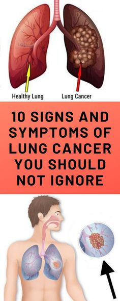 As indicated by the U. Places for Illness Control and Avoidance (CDC), lung cancer is the second most analyzed disease among both men and ladies in the United States. Otherwise called carcinoma of. Daily Health Tips, Health And Fitness Tips, Health And Wellness, Women's Health, Wellness Tips, Health Care, Holistic Wellness, Fitness Men, Mental Health