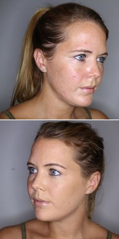 How to cover acne and redness with mineral foundation