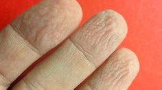Descubren la utilidad de los dedos arrugados en condiciones húmedas