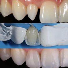 Reanatomização do dente lateral conóide com resina composta. by @stomatology.ua #dental #dentalanatomy #dentalassistant #dentalcare #Dentalhygiene #dentalpics #dentalschool #dentalstudent #Dente #dentes #Dentist #Dentista #Dentistry #Odonto #Odontogram #Odontologia #Odontología #Odontologo #Odontology #Odontolove #Odontopaixão #Odontoporamor #Oralhealth #Pdentista #profissaodentista #Saúdebucal #Smile #Sorriso #Teeth #Tooth
