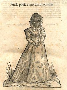Puella pilofa annorum duodecim in Monstrorum Historia
