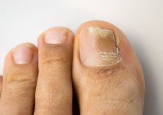 Remedies For Toenail Fungus onychomycosis with fungal nail infection - Fight toenail fungus at its source with these six simple toenail fungus home remedies. Nail fungus can be embarrassing, so start treating yours today. Toenail Fungus Home Remedies, Toenail Fungus Treatment, Toe Fungus, Fungal Nail Infection, Natural Home Remedies, Natural Healing, Blue Nails, Hair And Beauty, Health And Fitness