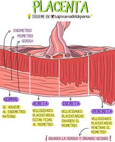🥁💡 𝗣𝗟𝗔𝗖𝗘𝗡𝗧𝗔 🤰 💉NORMAL 💉ACRETA 💉INCRETA 💉PERCRETA ➖➖➖➖➖➖➖➖ #medico #enfermería #enfermero Medicine Notes, Medicine Student, Medicine Book, Nursing School Notes, Obstetrics And Gynaecology, Medical Anatomy, Human Anatomy And Physiology, Med Student, Veterinary Medicine
