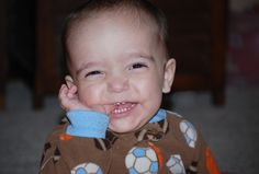 Most children with a rare autism-linked mutation develop baby teeth one to two years earlier than usual.