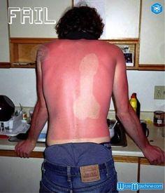 Lustiger Sonnenbrand in Penisform auf dem Rücken