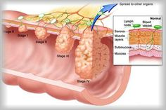 Bone Cancer Bone Cancer – Types, Causes, Symptoms and Treatment