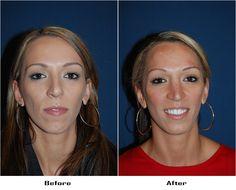 Facial Implant, Chin Implant, Rhinoplasty, Hoop Earrings, Fashion, Moda, Fashion Styles, Fashion Illustrations, Earrings