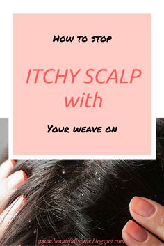 Why does my scalp itch so bad and how do I stop it? Here are ways to alleviate itchy scalp. Do read....