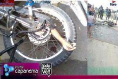 R12 Noticias : Imagem forte: Garoto perde o braço em acidente com...