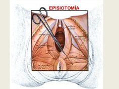 Estás embarazada? Quieres tener parto vaginal? Te da miedo que el médico te corte (te practique una episiotomía)? Con masajes perineales puedes evitar desgarros, episiotomía y otras lesiones al piso pélvico.