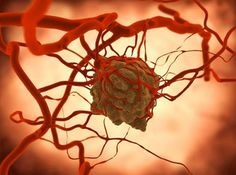 targeted therapy for cancer, targeted therapy in breast cancer, targeted treatment for cancer