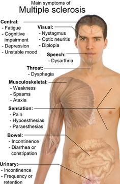 Article: Multiple Sclerosis 101 http://www.examiner.com/multiple-sclerosis-in-national/multiple-sclerosis-101-what-are-the-symptoms