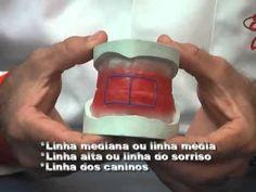 Curso de prótese total com Enilson Carneiro - Parte 2. - YouTube