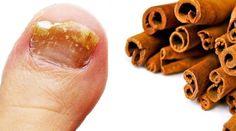 Kein Pilz überlebt dieses starke Rezept mit Zimt – Gesund Leben Green Life, Home Remedies, Health And Beauty, Spices, Youtube, Ideas, Tela, Thyroid, Arthritis