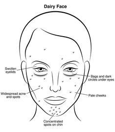 Falsche Ernährung: DAS tut Milch deiner Haut im Gesicht wirklich an!