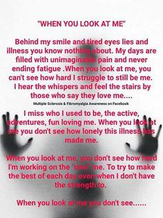 So damn true! Fibromyalgia Pain, Chronic Pain, Chronic Fatigue Syndrome, Chronic Illness, Thyroid Issues, Ehlers Danlos Syndrome, Tired Eyes, Invisible Illness, Hypothyroidism