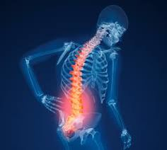 Image result for back x ray