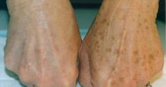 Brown spots or as they people also know them – liver spots and age spots appear as flat and brown or dark spots on the skin. They can be different in size. They mostly appear on the hands, shoulder… Age Spots On Face, Spots On Legs, Brown Spots On Skin, Skin Spots, Dark Spots, Brown Skin, Age Spot Remedies, Natural Remedies, Age Spot Removal
