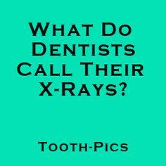 Dentist-Related Jokes