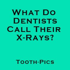 Q: What do dentists call their X-Rays?  A: Tooth-Pics