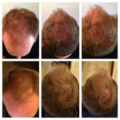 And then there is hair! Try hair skin & nails... it works!