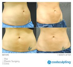 Have that last bit of fat you can't seem to get rid of? Let the CoolSculpting procedure get you there. (Photo Credit: @psclinic) Rules of Engagement: http://on.fb.me/1Etu0Hm