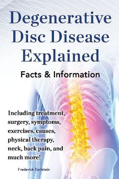Degenerative Disc Disease Explained. Including Treatment, Surgery, Symptoms, Exercises, Causes, Physical Therapy, Neck, Back, Pain, and Much More! I suffer from this,and scyatic nerves in both legs,Severe Spinal Stenosis,Arthritis  in my spine..Pain is excruciating. .