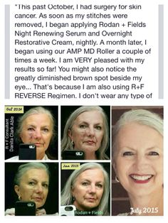 Danita's story is such an inspiration. Skin cancer is a real thing and can happen to anyone  no matter your age. R+F has multiple options for sunscreens but the Unblemish Oil Control SPF is my favorite and great for anyone with oily skin.  We don't guarantee these results but we do guarantee you your money back if you're not satisfied! #redefineaging  Andiwatson.myrandf.com Andrea_watson15@yahoo.com