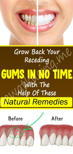 Health nutrition Grow Back Your Receding Gums In No Time With The Help Of These Natural Remedies . Grow Back Your Receding Gums In No Time With The Help Of These Natural Remedies - healthy world Natural Hemroid Remedies, Natural Add Remedies, Natural Remedies For Migraines, Natural Herbs, Natural Healing, Holistic Nutrition, Diet And Nutrition, Health Diet, Health And Fitness Tips