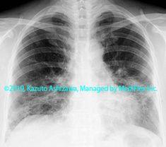 10. 間質性肺炎 症例093:リンパ球性間質性肺炎 胸部単純X線写真,『コンパクトX線アトラスBasic 胸部単純X線写真アトラス vol.1 肺』