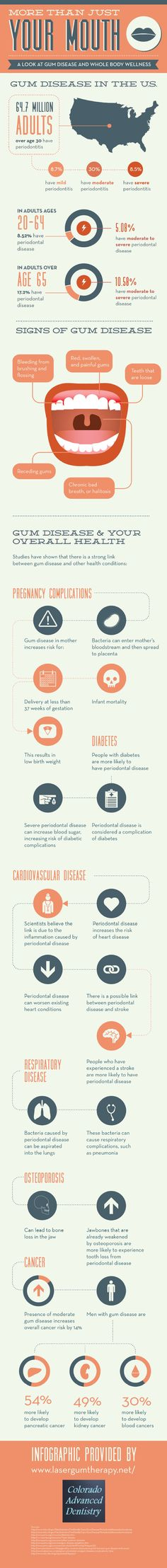 Gum disease is common among American adults. When pregnant women suffer from gum disease, they may also be putting their unborn babies at risk. Read about the risks of gum disease during pregnancy on this infographic from a Denver dentist. Source: http://www.lasergumtherapy.net/662548/2013/03/13/more-than-just-your-mouth-a-look-at-gum-disease-and-whole-body-wellness-infographic.html