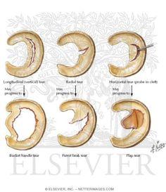 Tears of Meniscus Knee Joint Anatomy, Anatomy Of The Knee, Knee Mri, Knee Injury, Human Body Anatomy, Knee Exercises, Knee Surgery, Mental Health Support, Alternative Medicine