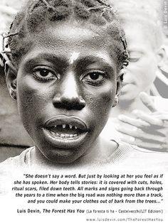 Filed teeth - Baka Pygmies, Cameroon