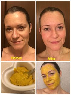 You Can Lose 20+ Pounds By Cook With #AppleCiderVinegar, BUT Only If You Use #AppleCiderVinegar The RIGHT Way, I made a tumeric and coconut oil mask, and the results were insane!! So easy. Just mixed coconut oil and tumeric into a paste and left it in for about 20 minutes. Great to do before a special occasion. Its supposed to be good for wrinkles, dark circles, red blotches and even unwanted hair removal. Pretty cool!! , #AppleCiderVinegar, #AppleCiderVinegarRecipes, #AppleCiderVinega...
