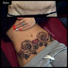 After surgery tatts to cover streachmarks Stomach Tattoos Women, Belly Tattoos, Hot Tattoos, Mini Tattoos, Body Art Tattoos, Sleeve Tattoos, Tattoos For Women, Tatoos, Tattoo Cover Up