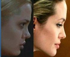 Angelina Jolie Plastic Surgery Before And After | Women Www.drgregpark.com for more info about plastic surgery