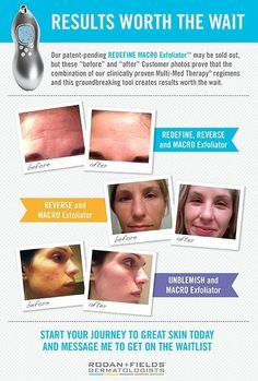 tracie bonds rodan and fields | Rodan + Fields Macro E results from real customers...no touch ups ...
