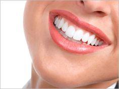 Teeth Whitening Advice From NewBeauty Readers #BeautyTips #Whitening #Smile
