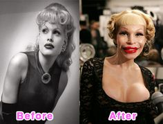 Amanda Lepore's Plastic Surgery Fail: Probably because she's one of the most famous transsexual. Amanda Lepore is a scary example of Plastic surgery gone wrong. Bad Celebrity Plastic Surgery, Botched Plastic Surgery, Bad Plastic Surgeries, Plastic Surgery Before After, Plastic Surgery Gone Wrong, Plastic Surgery Fails, Forehead Lift, Amanda Lepore, Celebrities Before And After