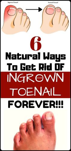 Natural healing remedies - Treat Your Ingrown Toenail With These 6 Natural & Homemade Remedies Natural Health Remedies, Natural Cures, Natural Healing, Herbal Remedies, Natural Treatments, Natural Foods, Cold Remedies, Bloating Remedies, Natural Beauty