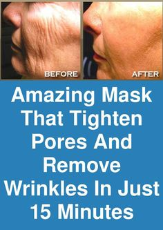 Amazing mask that tighten pores and remove wrinkles in just 15 minutes Wrinkles appear with age, usually as a result of the skin… in 2020 Avocado Smoothie, Tighten Pores, Mental Training, Face Wrinkles, Skin Care Cream, Younger Looking Skin, Younger Skin, Skin Treatments, Natural Treatments