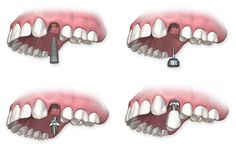 how long does a dental implant procedure take - Google Search