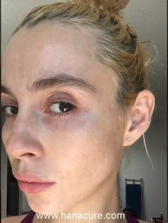 The Most Powerful Facial You Must Try - Acne Treatment Cystic Acne Treatment, Facial Treatment, Skin Treatments, Acne Out, Greasy Skin, Permanent Makeup Eyebrows, How To Treat Acne, Beauty Skin, Beauty Tips