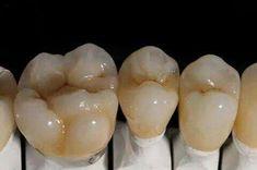 Dental Art, Dental Teeth, Dental Photos, Porcelain Crowns, Dental Aesthetics, Dental Anatomy, Dental Technician, Dental Crowns, Perfect Smile