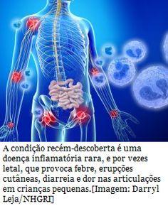 Farmacêutica Curiosa: Otulipenia: Descoberta nova doença autoimune