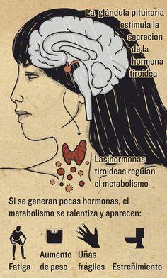 Hipotiroidismo   Magazine   Infografía salud